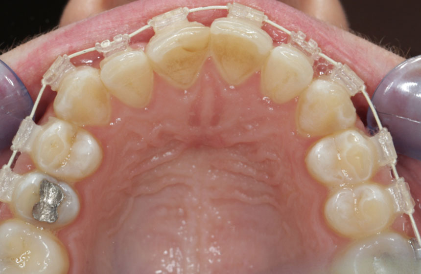 Anoop Maini - ClearSmile Brace - 6 week occlusal view