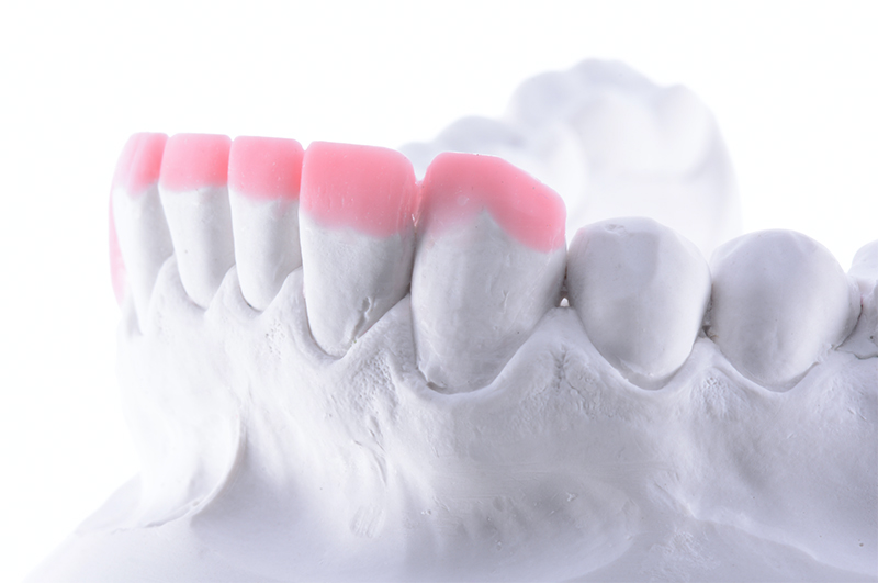 Buckle & Parmar - Minimal Invasion for Maximum Succes - When to use Indirect restorations