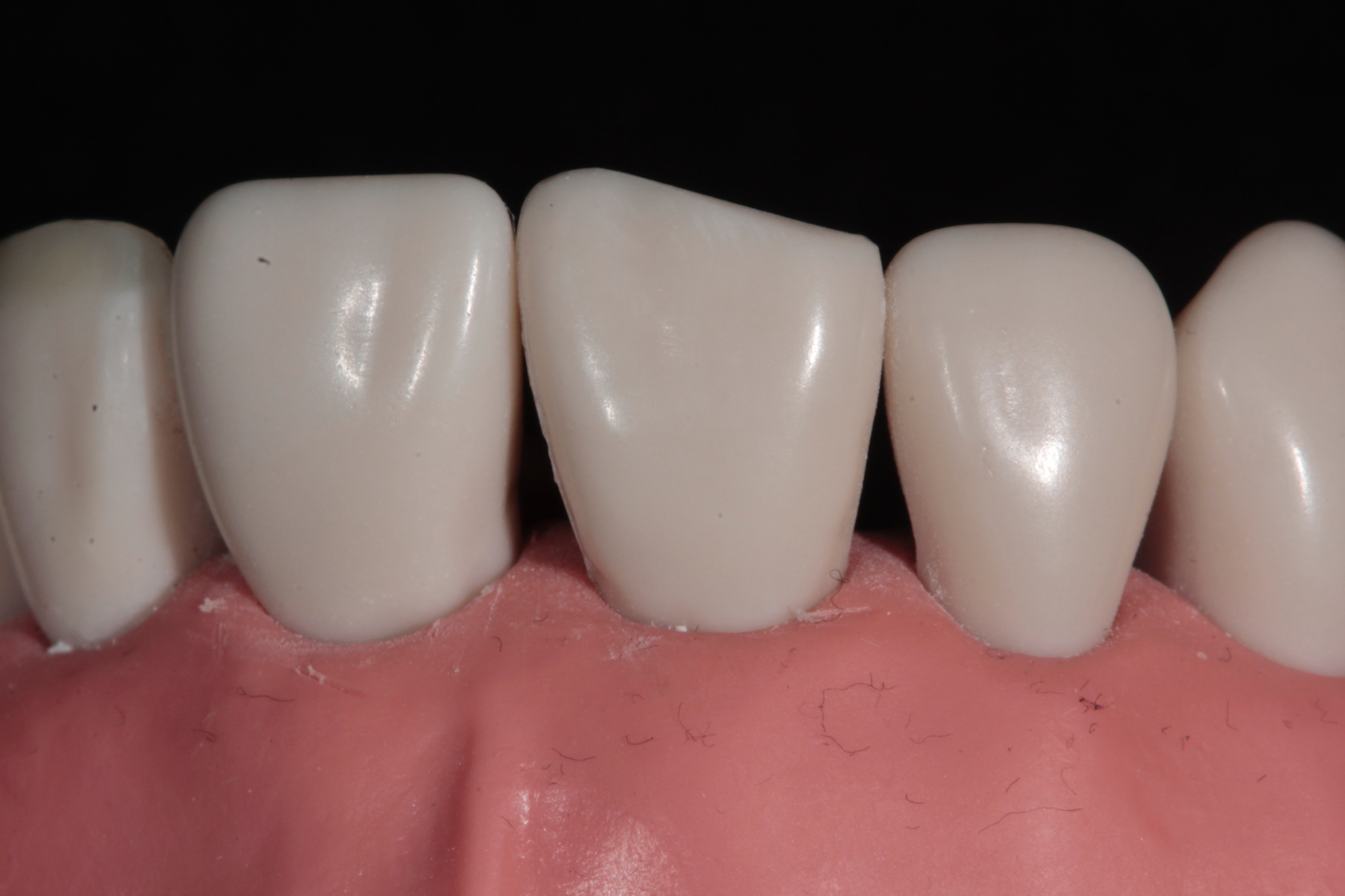 Tif Qureshi - Ortho restorative - case 2.1