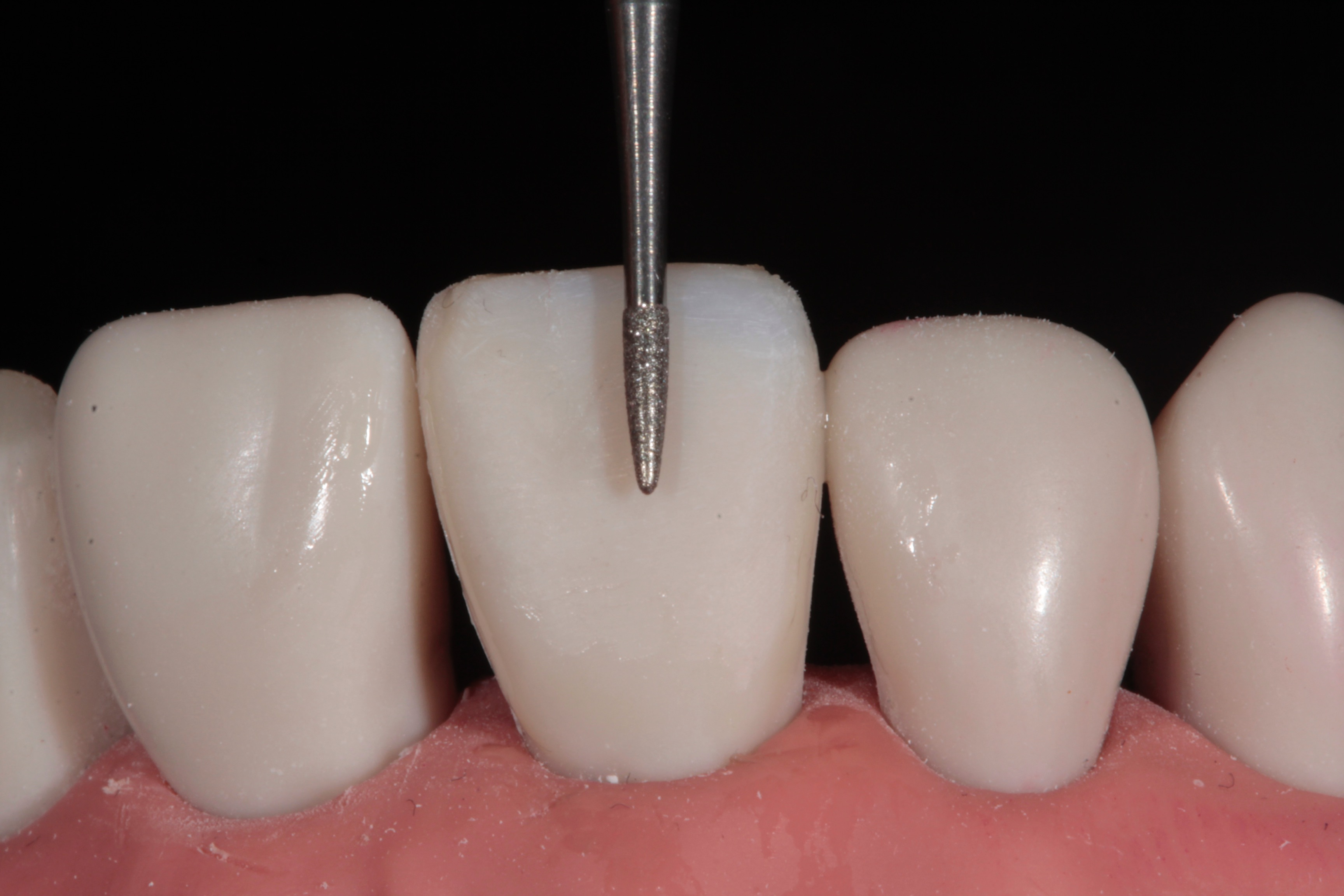 Tif Qureshi - Ortho restorative - case 2.4