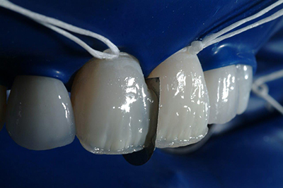 Pascal Magne - Update in anterior bonded restorations, Case 1.1