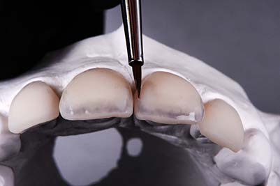 Pascal Magne - Update in anterior bonded restorations, Case 1.4
