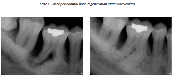 Periodontal Bone Regeneration (Dual Wavelength) - Dr Mark Cronshaw.png