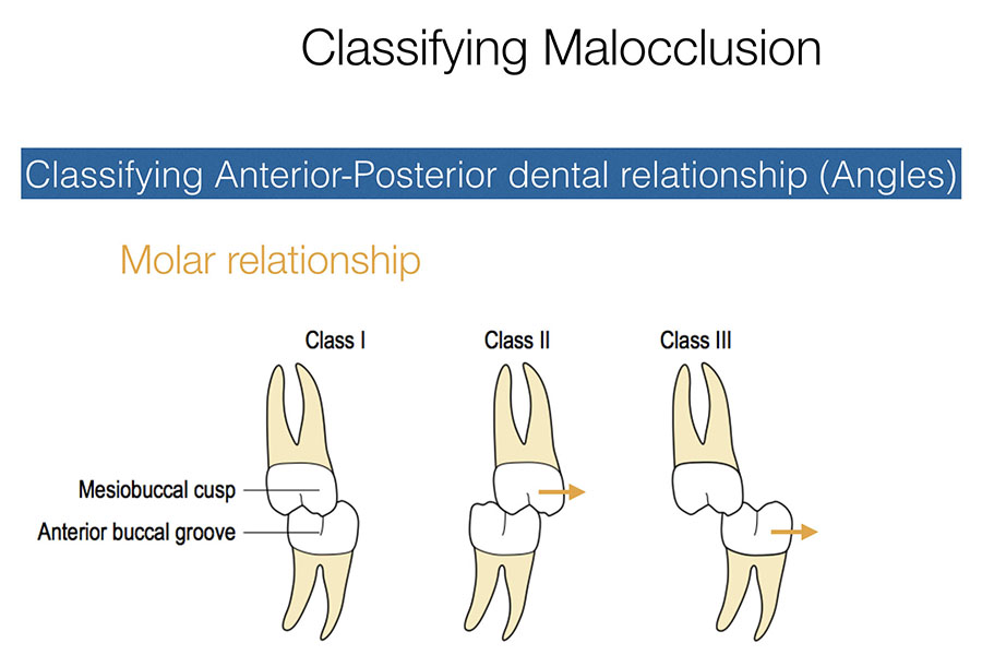 Classifying the molar malocclusion - Core knowledge