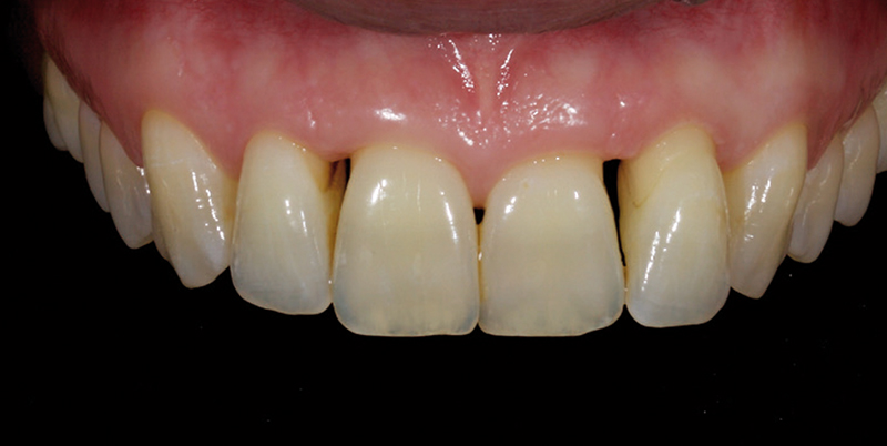 Jason Smithson - Direct Resin Restorations in the Anterior Dentition - Closing black triangles step 1
