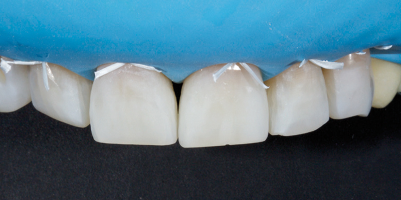 Jason Smithson - Direct Resin Restorations in the Anterior Dentition - Treating wear step 2