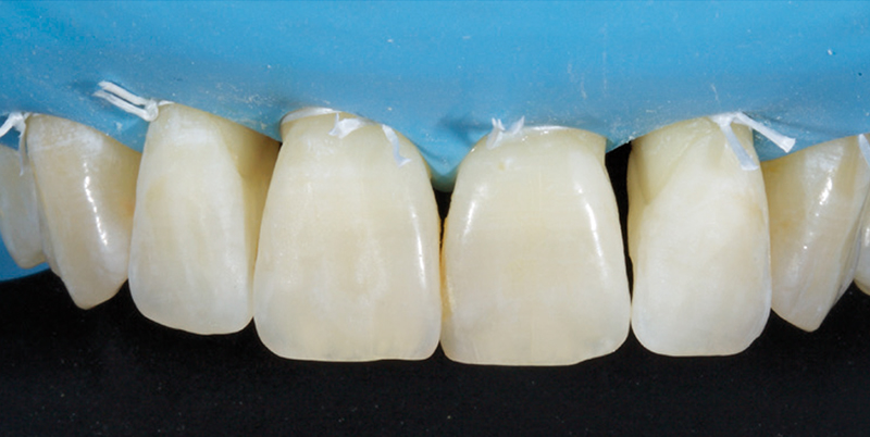 Jason Smithson - Direct Resin Restorations in the Anterior Dentition - Closing black triangles step 2