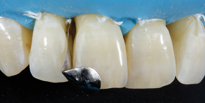 Jason Smithson - Direct Resin Restorations in the Anterior Dentition - Closing black triangles step 3