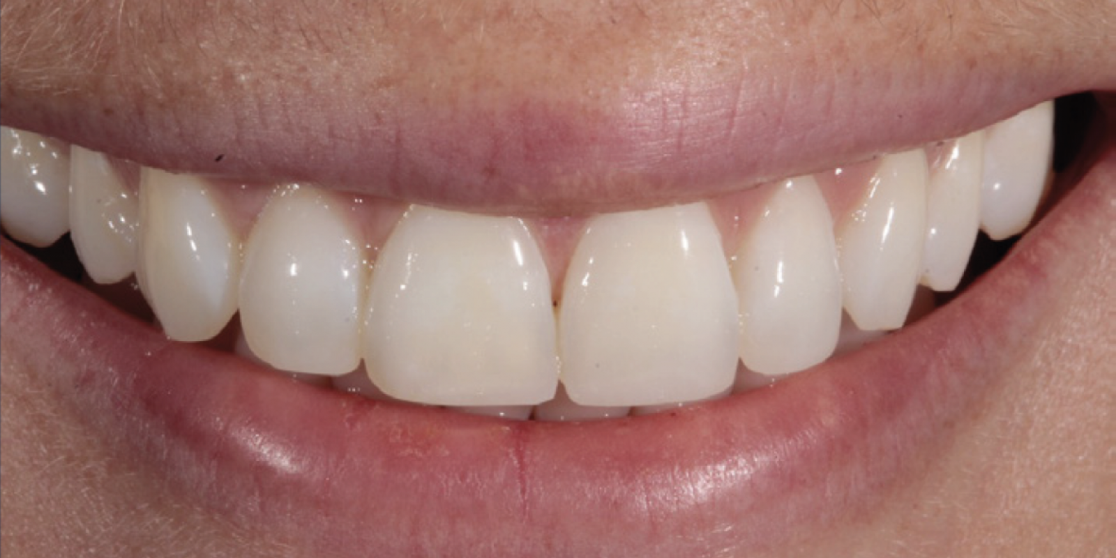Tif Qureshi - Ortho restorative - case 1.2