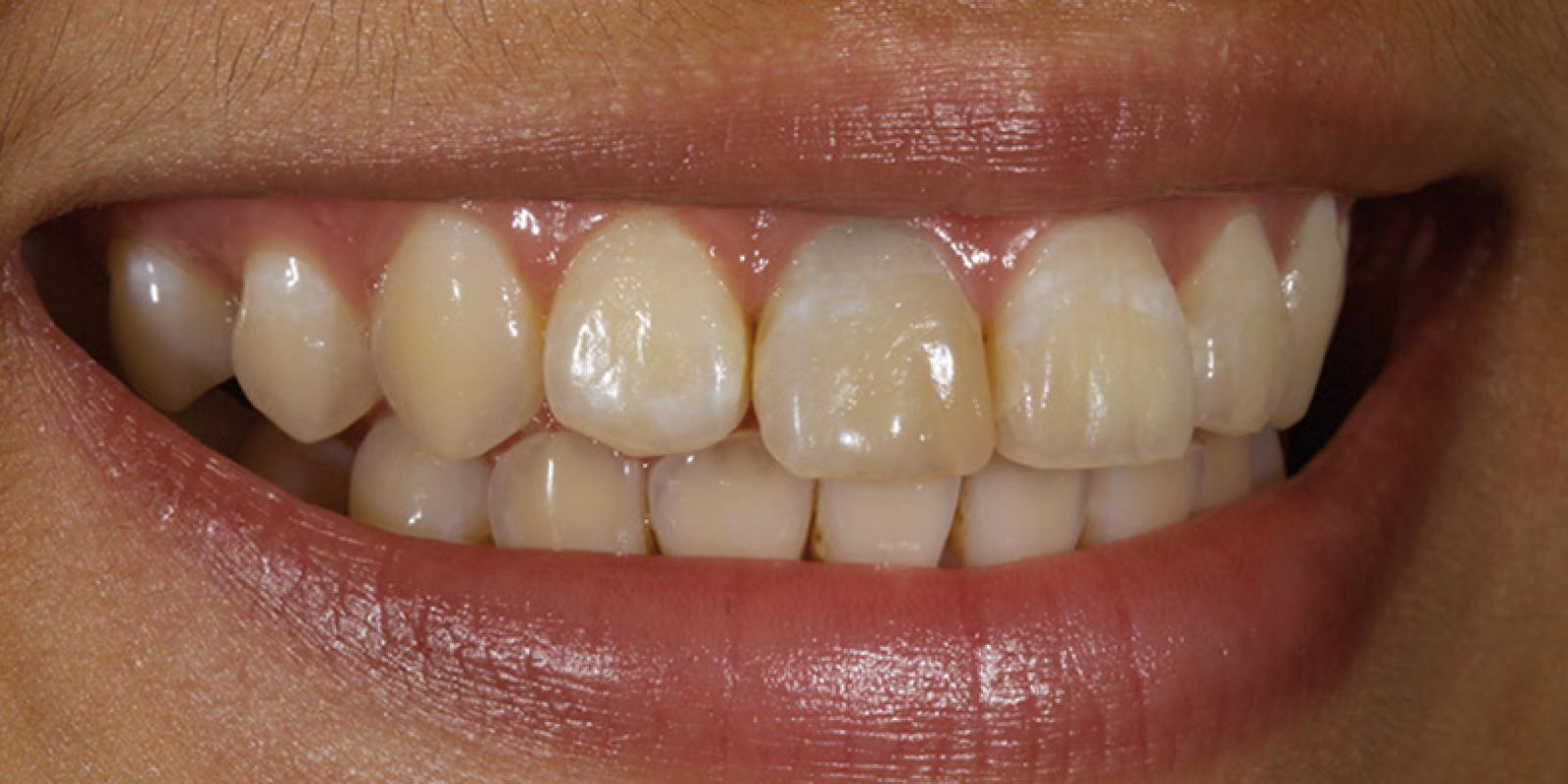 Dr. Jason Smithson - Direct Resin Restorations in the Anterior Dentition