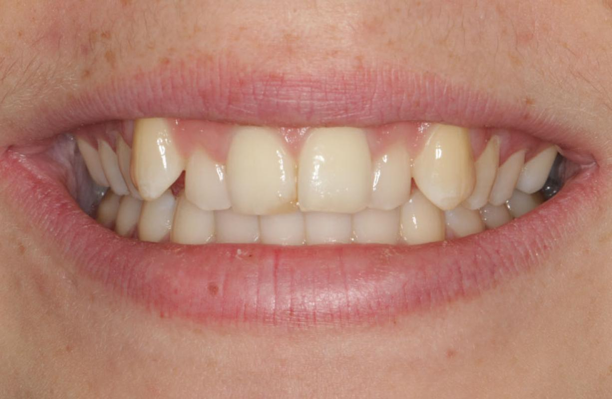 Anoop Maini - ClearSmile Brace - Patient concerned about anterior crowding