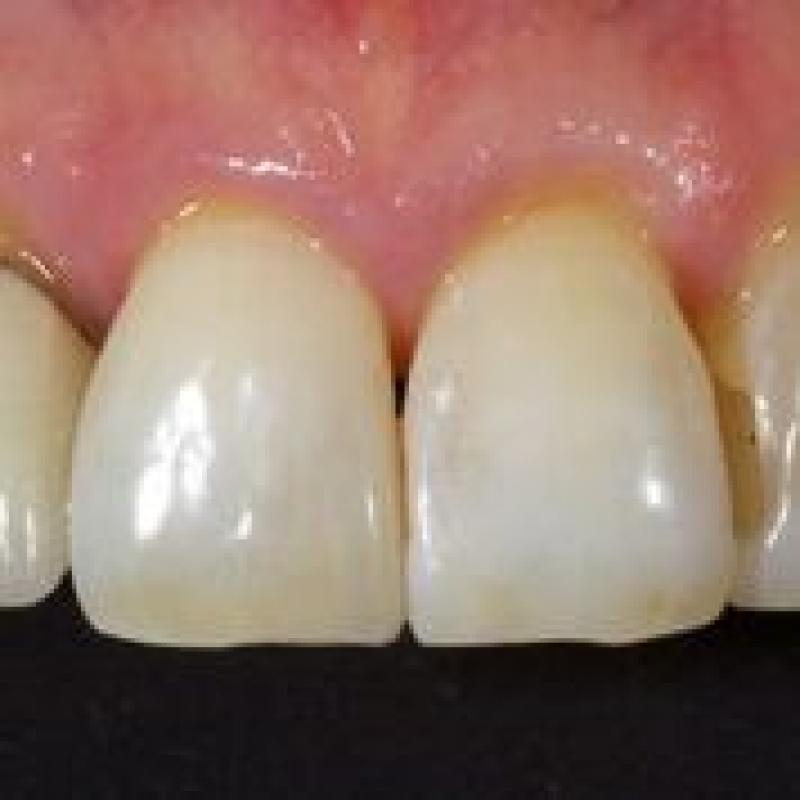 Heraeus Kulzer - Direct Resin Veneers