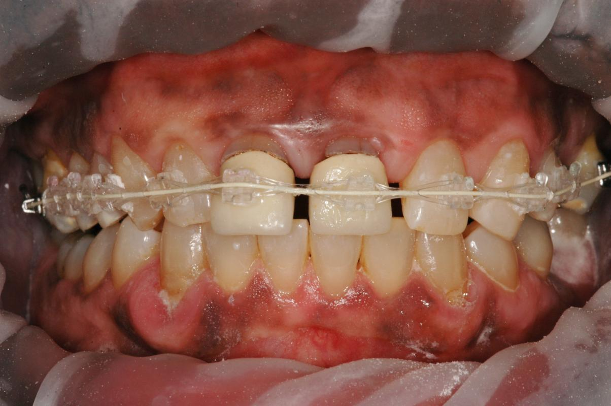 Anoop Maini - Clear Smile Brace - During ClearSmile Brace treatment