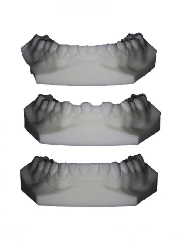Buckle & Parmar - Minimal Invasion for Maximum Succes - Fully moulded and every other tooth technique