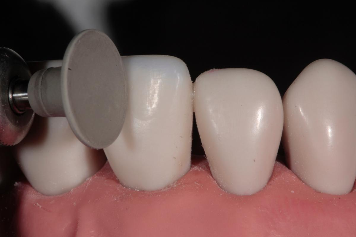 Tif Qureshi - Ortho restorative - case 2.5