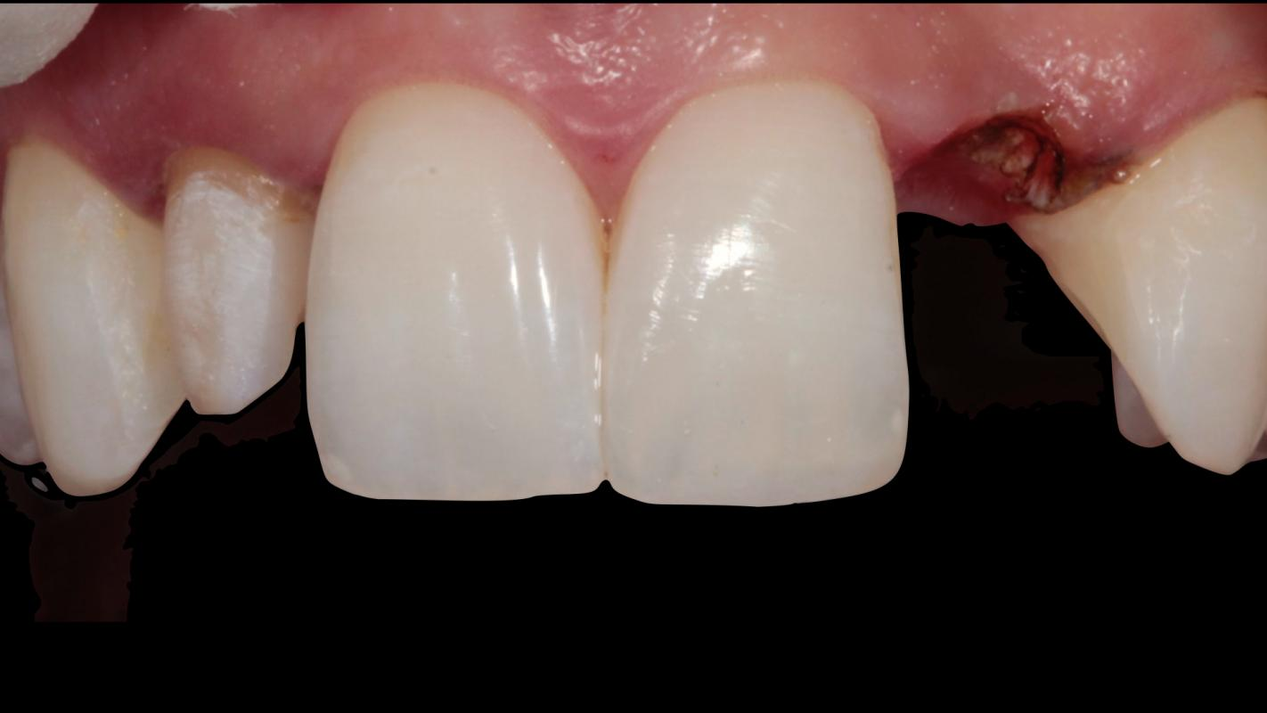 Tif Qureshi - Ortho restorative - case 1.3