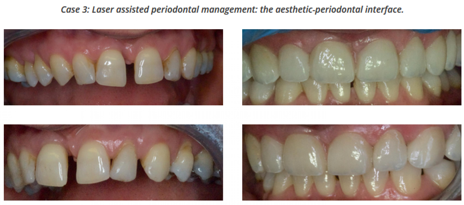Laser Assisted Periodontal Management. The Aesthetic-Periodontal Interface. Dr Mark Cronshaw, BIOLASE.png