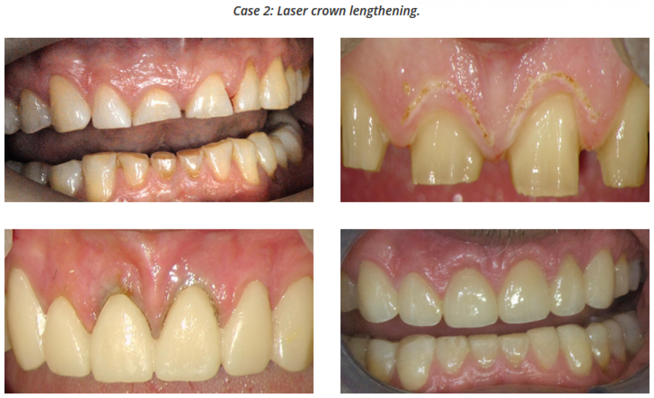 Laser Crown Lengthening - Dr Mark Cronshaw - BIOLASE.png