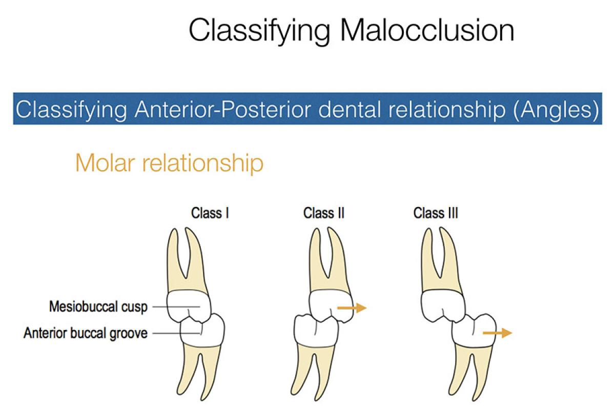 Classifying the molar malocclusion - Essential orthodontic principles