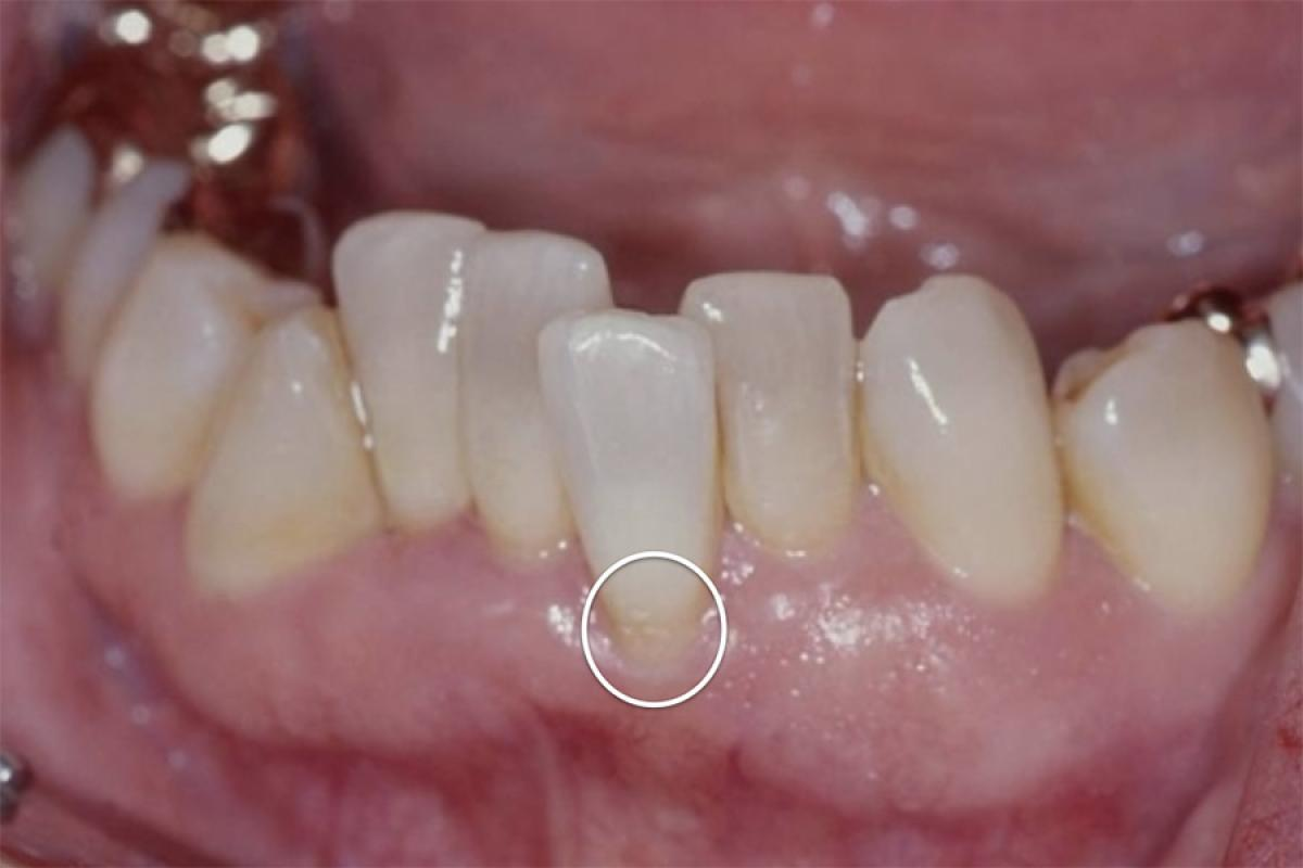 Risks of orthodontic treatments - Essential orthodontic principles