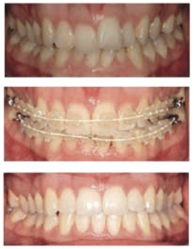 IAS - Anterior Alignment Orthodontics
