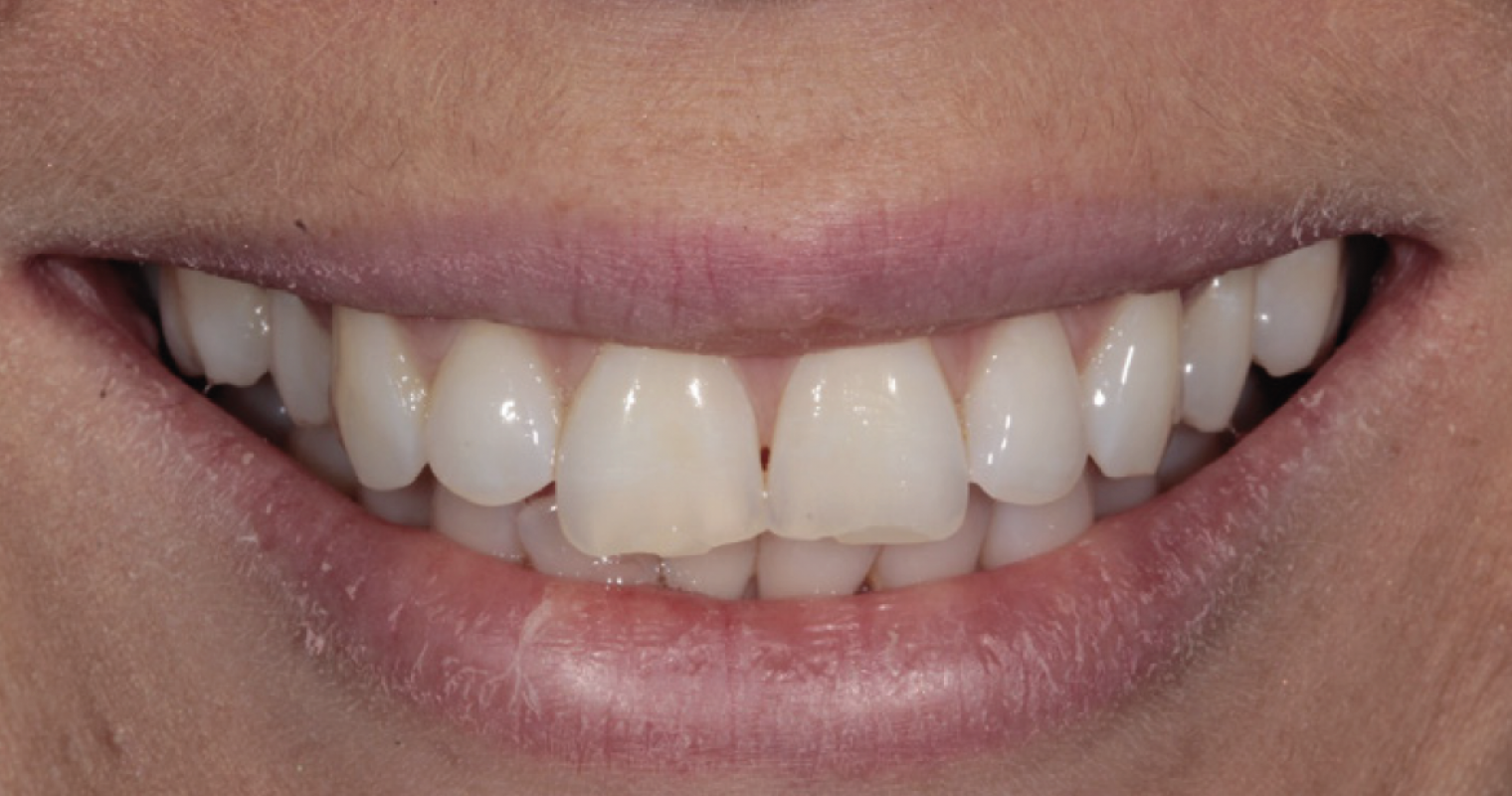 Tif Qureshi - Ortho restorative - case 1.1