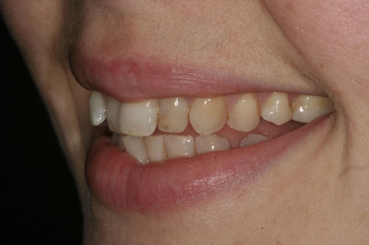 12 weeks of alignment, ClearSmile Inman Aligner