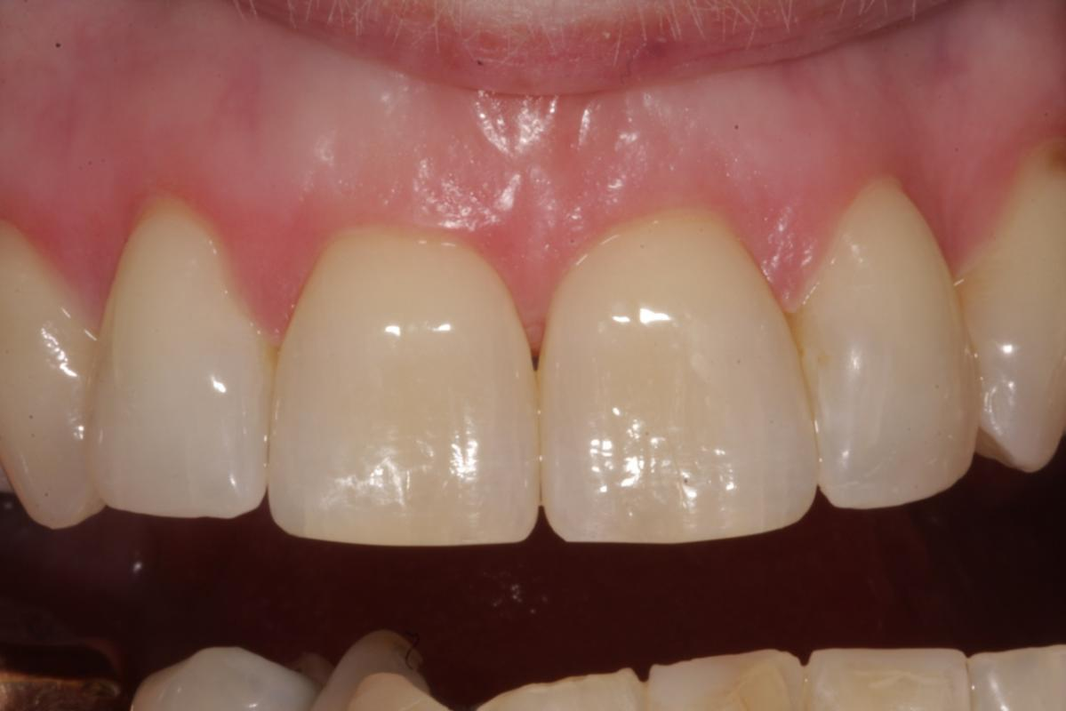 Jorge Perez - ClearSmile Aligner - After ClearSmile Aligner treatment
