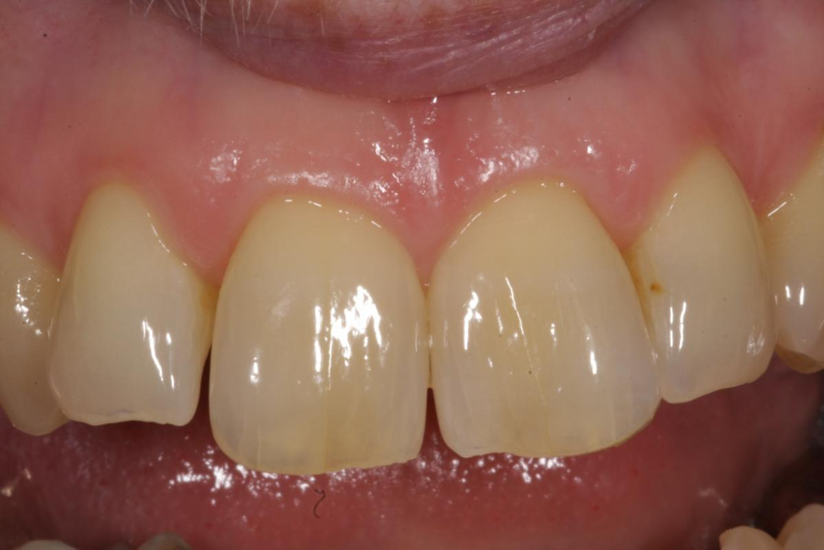 Jorge Perez - ClearSmile Aligner - Before ClearSmile Aligner treatment