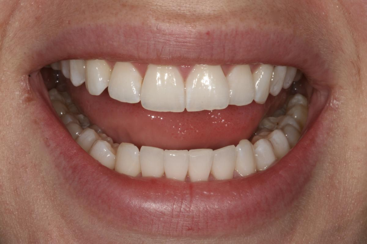 9 weeks of alignment, ClearSmile Inman Aligner
