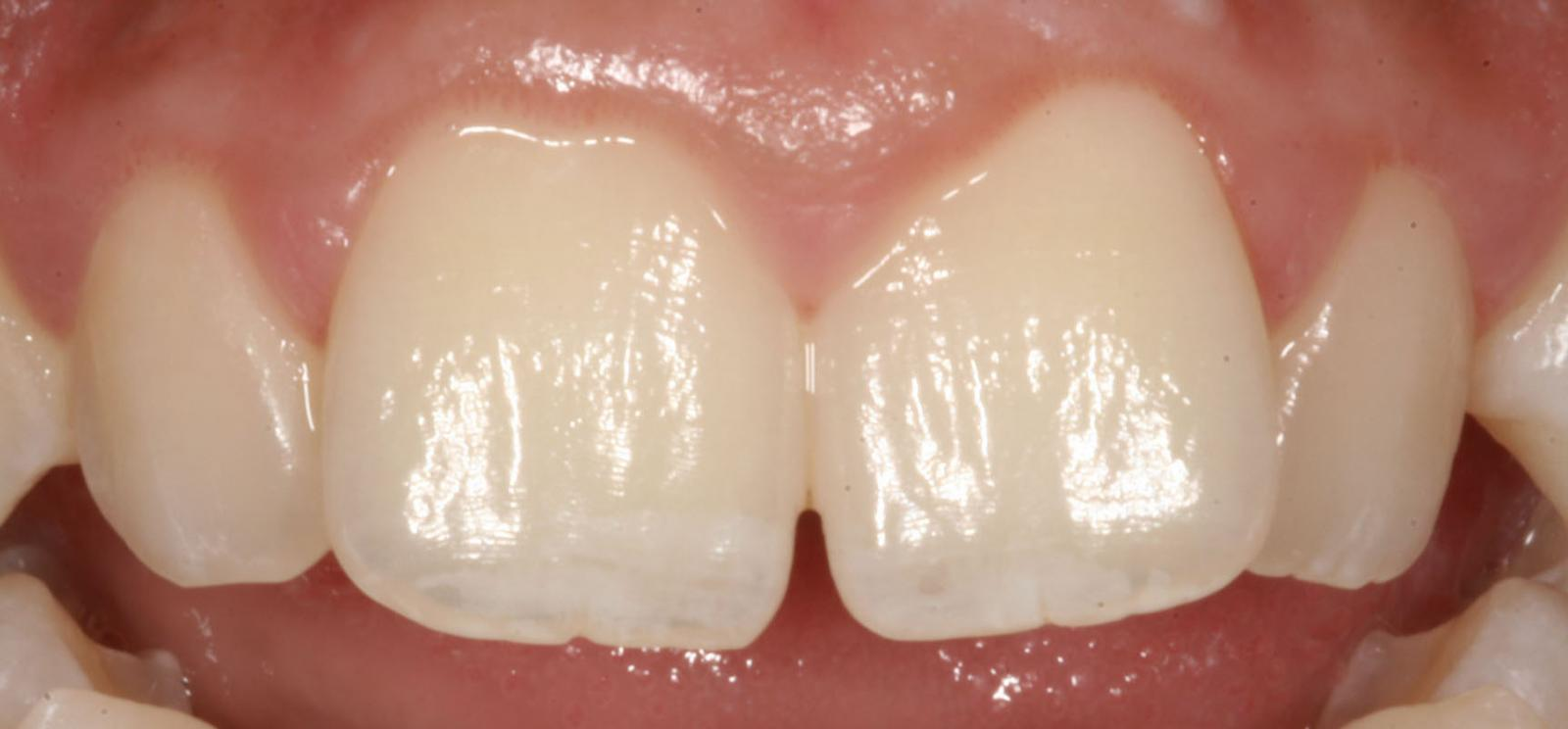 6 weeks of alignment, ClearSmile Inman Aligner
