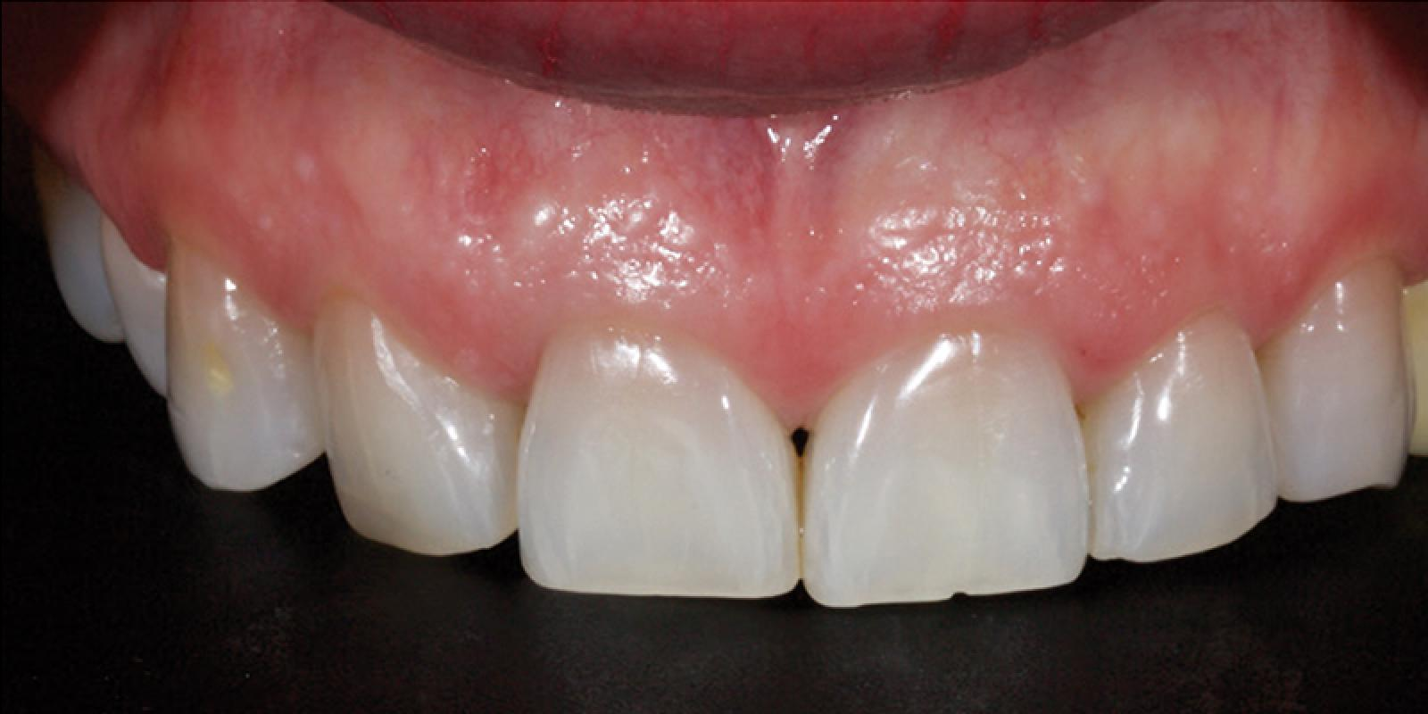 Jason Smithson - Direct Resin Restorations in the Anterior Dentition - Treating wear step 1