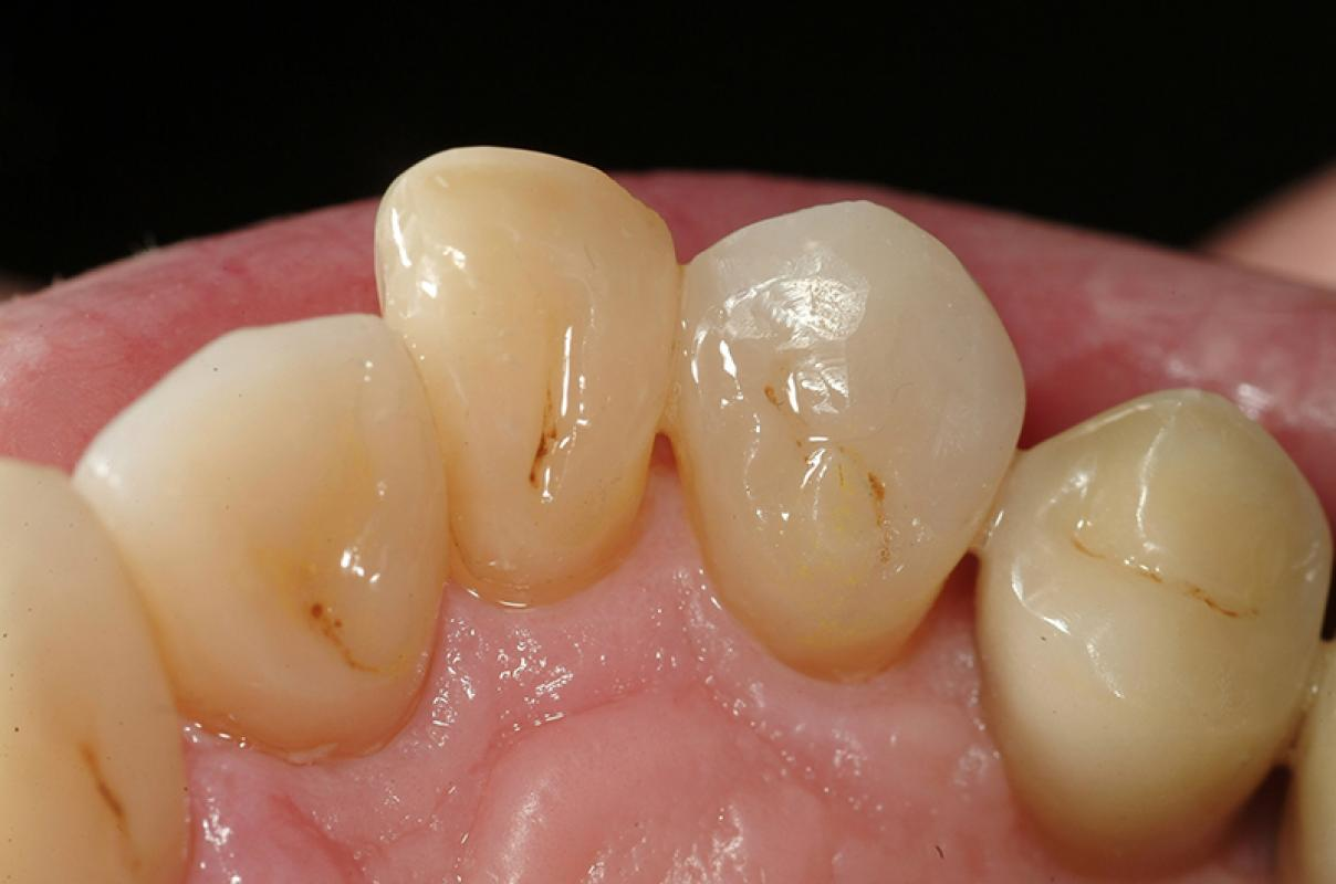 Francesca Vailati - Full Mouth Adhesive Rehabilitation of a severely eroded dentition - case 1.2