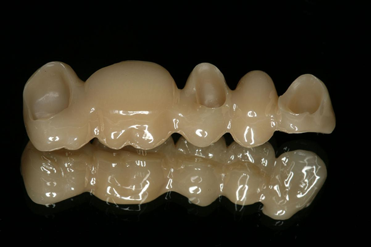 Matthias Kern - Clinical Outcome of All-Ceramic Restorations - case 1.2
