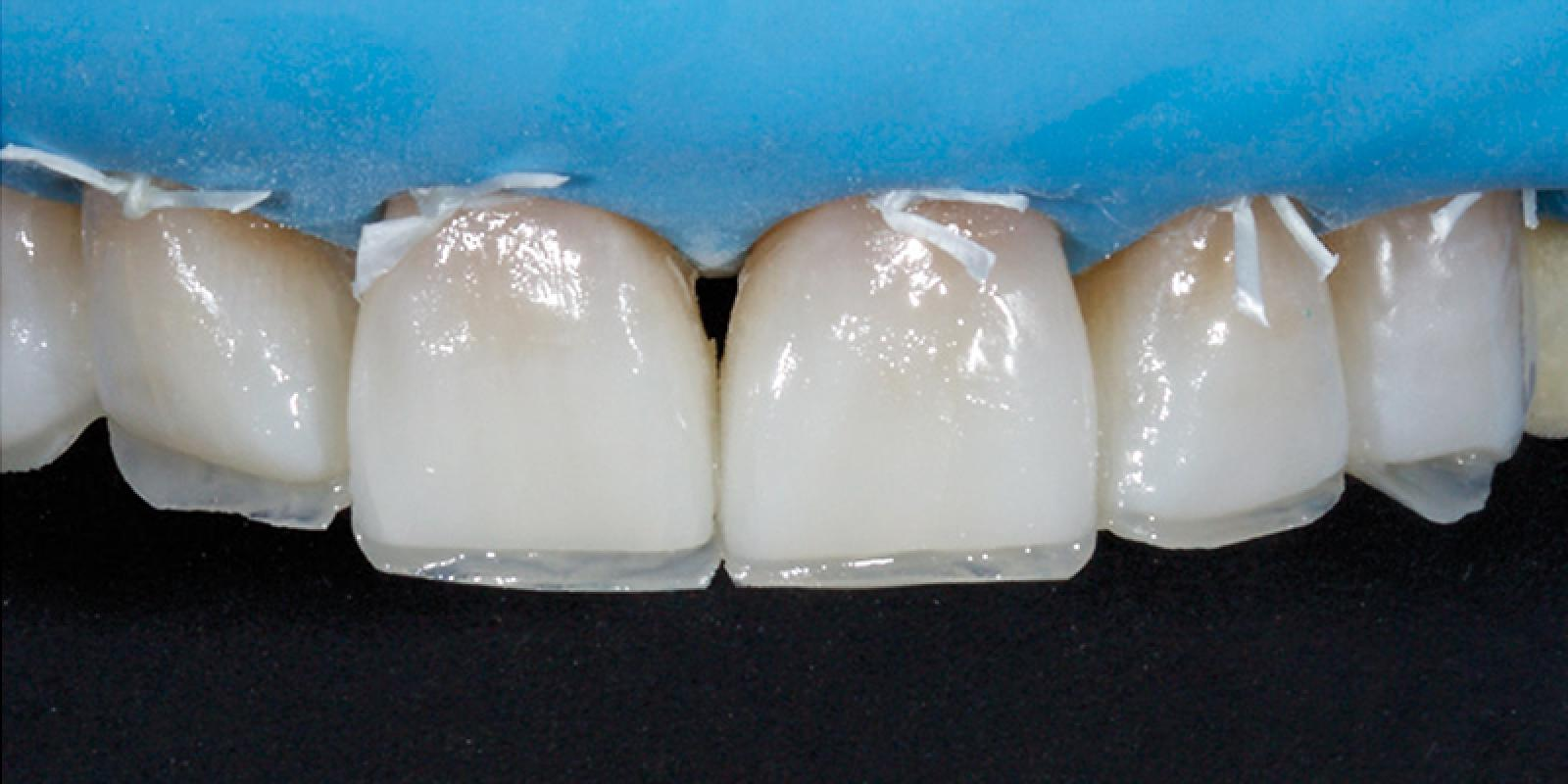 Jason Smithson - Direct Resin Restorations in the Anterior Dentition - Treating wear step 3