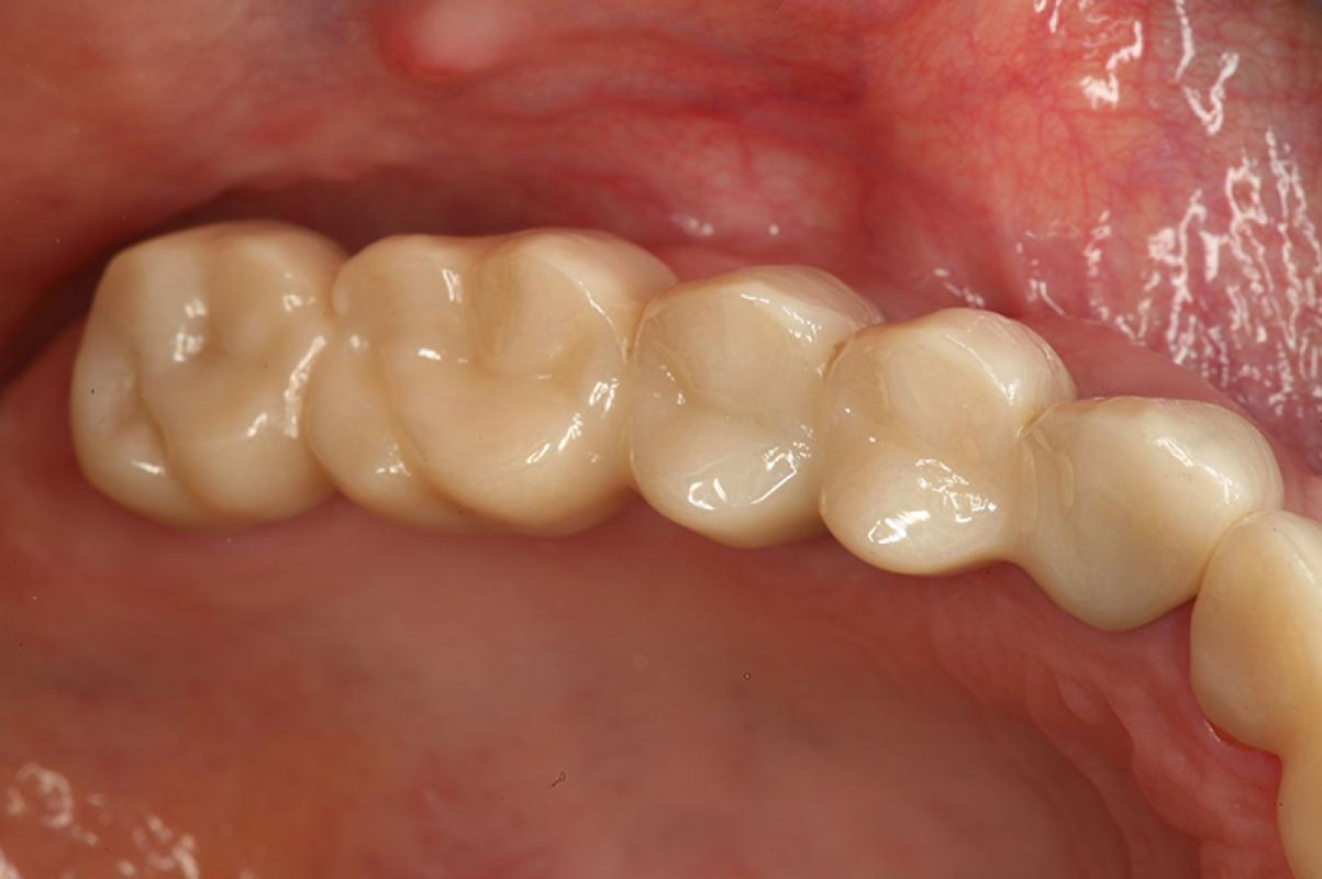 Matthias Kern - Clinical Outcome of All-Ceramic Restorations - case 1.3