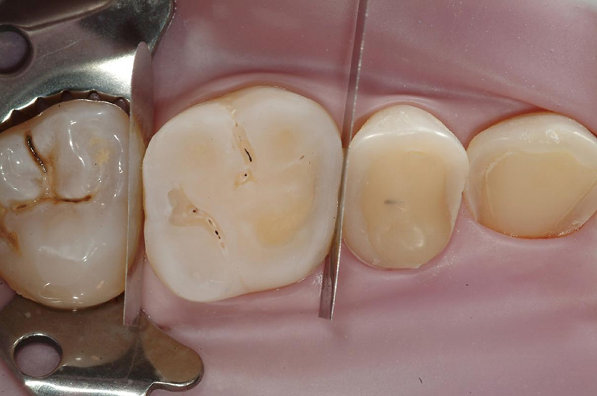 Francesca Vailati - Full Mouth Adhesive Rehabilitation of a severely eroded dentition - case 1.3