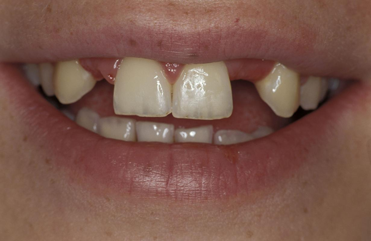 Matthias Kern - Clinical Outcome of All-Ceramic Restorations - case 2.1