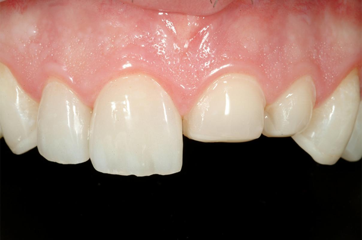 Francesca Vailati - Full Mouth Adhesive Rehabilitation of a severely eroded dentition - case 1.6