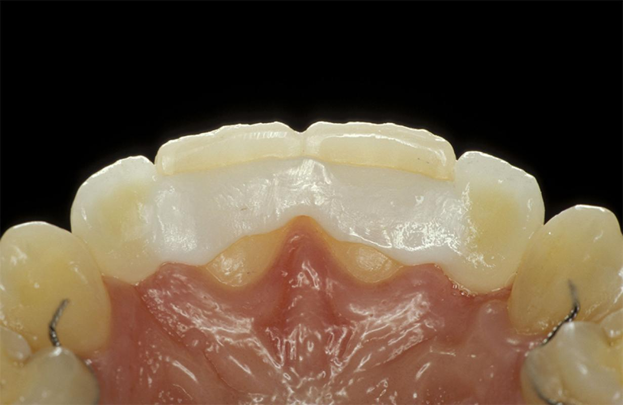 Matthias Kern - Clinical Outcome of All-Ceramic Restorations - case 2.3