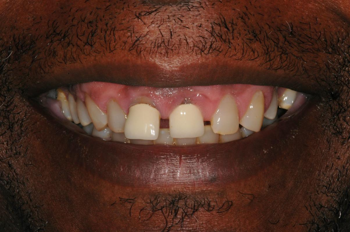 Anoop Maini - Clear Smile Brace - Before ClearSmile Brace treatment