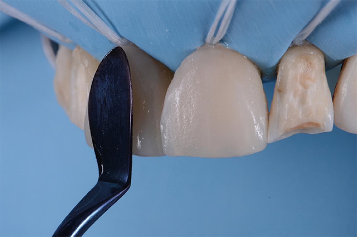 Buckle & Parmar - Minimal Invasive for Maximum Succes - How to handle materials for optimum results